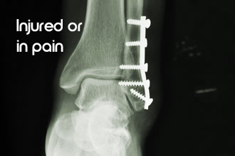 Injured or in pain?